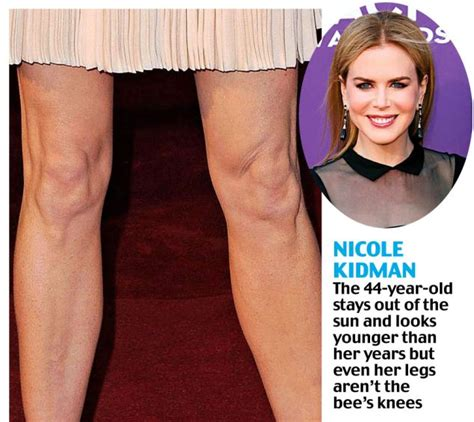 celebrities with stretch marks picture 3