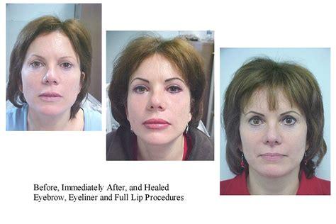 skin pigmentation problems picture 15