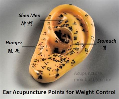 acupuncture for appetite control picture 7