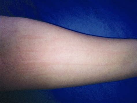 Physical urticaria picture 3