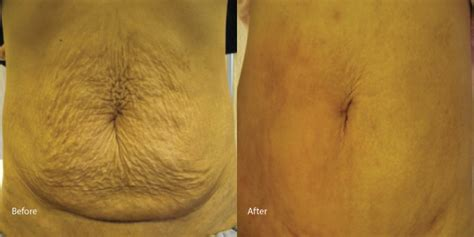 how effective is laser on white stretch marks picture 5