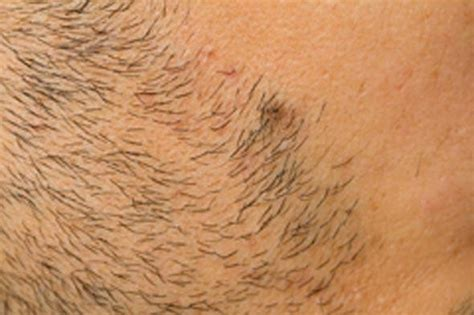ingrown hair removal picture 2