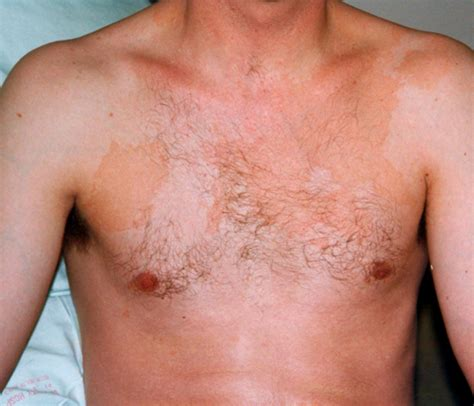 yeast infection remedies picture 10