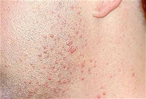 acne caused by prednisone picture 3