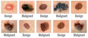 dermatologist skin tumors picture 1