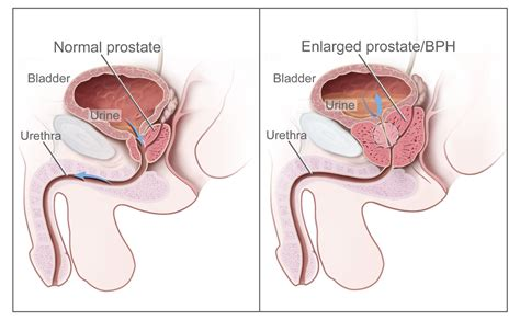 does sex worsen an enlarged prostate picture 11