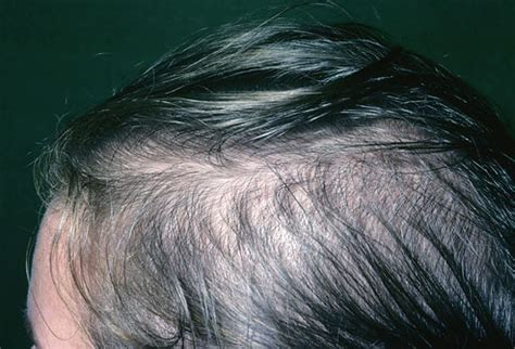 can damatol medicated hair food cause hair loss picture 12