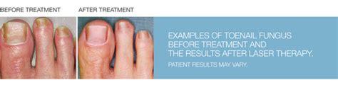 foot fungus laser treatment in ohio picture 1