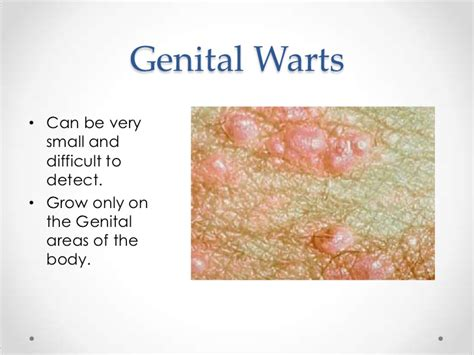 will ing spread genital warts picture 6