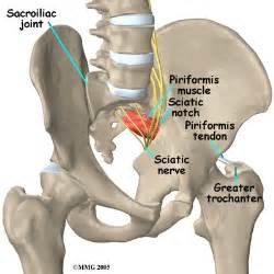 joint and nerve pain picture 6
