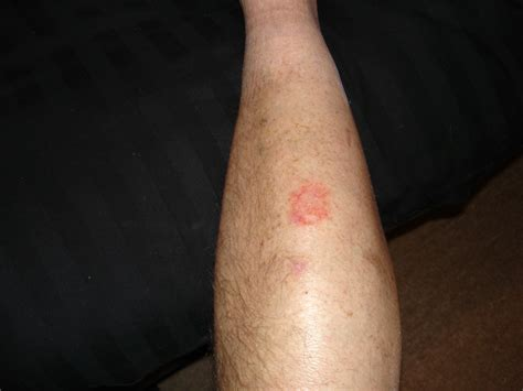 yeast infection itchy legs picture 7