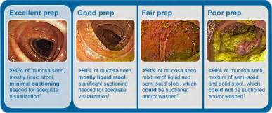 bowel prep for colonoscopy picture 2