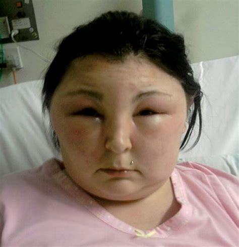 allergic reactions hair dye picture 10