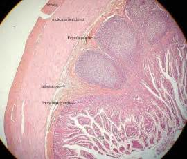 how to rid of mucus picture 10