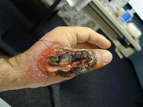 cure vampire fungus in my stomach picture 6