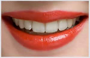 washington d.c. teeth whitening picture 11
