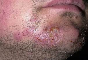 equine herpes treatment picture 15