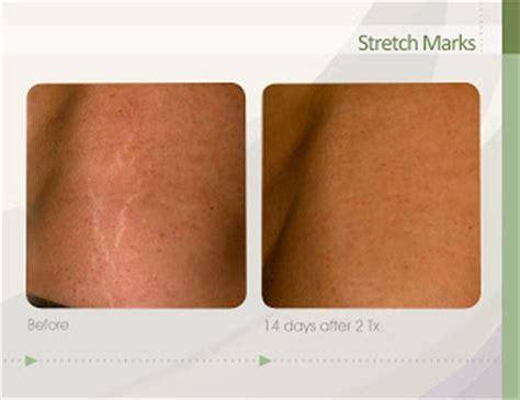 alokem 75 gel for stretch marks how much picture 5