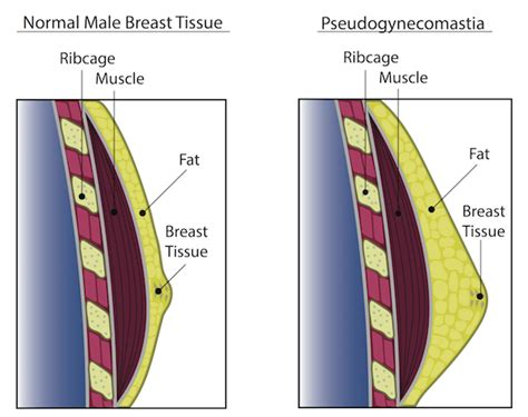 testosterone injections for gynecomastia picture 2