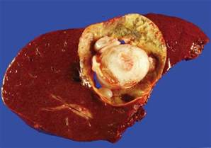 what causes liver cysts in humans picture 2