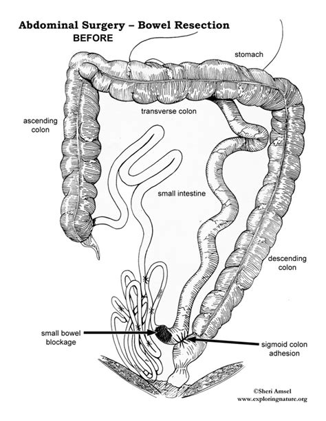 colon resection surgery picture 11
