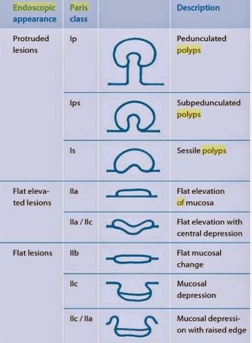 disorders of the colon picture 18