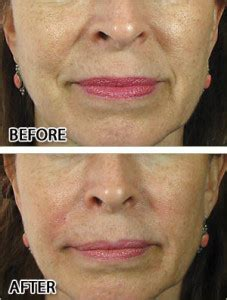 anti aging before and after pixtures picture 9