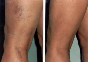 veracose veins and cellulite picture 5