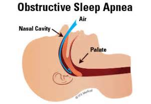 obstructive sleep apnea not snoring picture 3