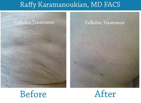 cellulite and water treatment picture 14
