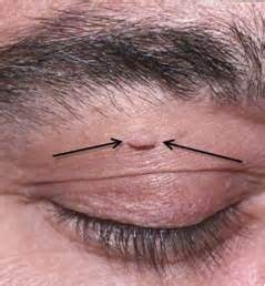 skin growth in eye picture 5