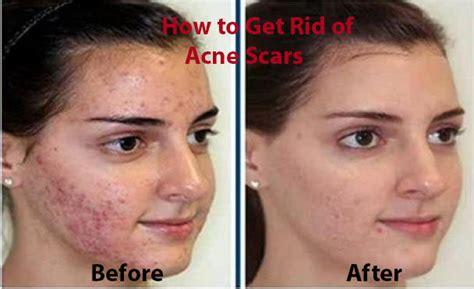 remove acne scars picture 6