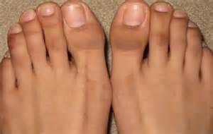 dark skin on feet picture 1