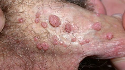 warts on penis picture 14