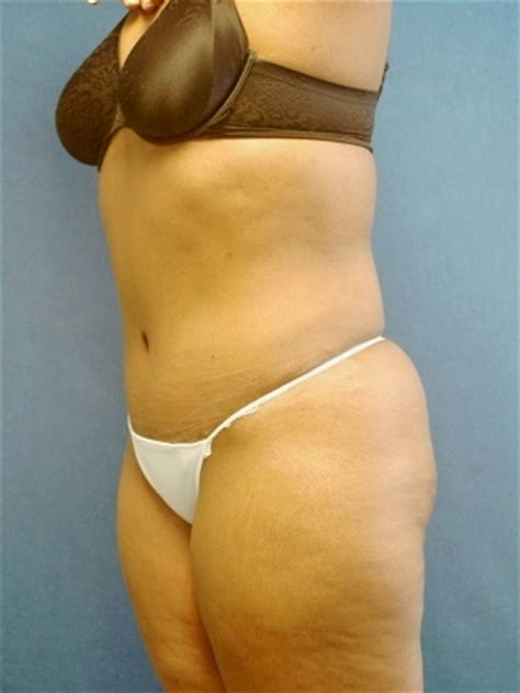 breast augmentation indianapolis picture 5