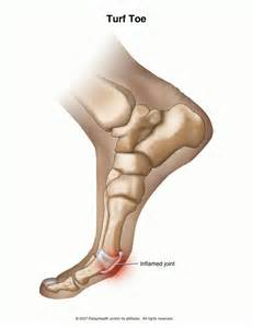 toe joint pain picture 6