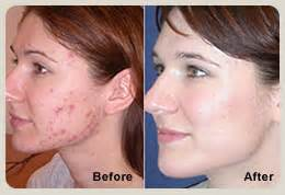 light treatment acne picture 1