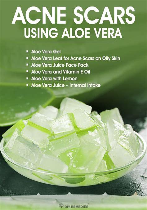 aloe vera curing pimple/lindaikeji picture 1