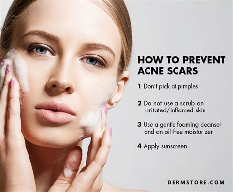 at home acne treatment picture 7