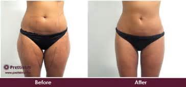 reduce cellulite picture 11