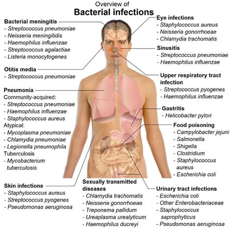 types of bacterial infections picture 1