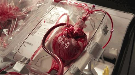 heart and liver transplant picture 1