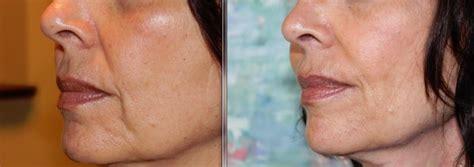 az vein skin rejuvenation picture 3