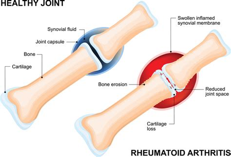 fluid joint picture 2