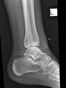 ankle joint effusion and ruptured achilles tendon picture 14