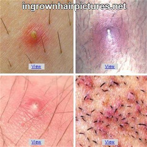 is it herpes or just itching picture 3