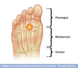 joint ball foot pain picture 5