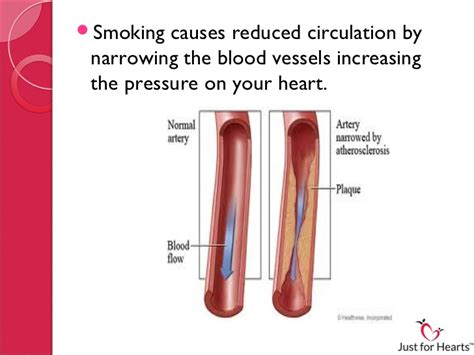 affects of secondhand smoke picture 14