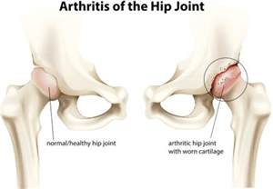 hip joint medical information picture 7