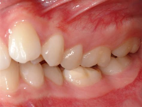 picture of h cavities picture 1
